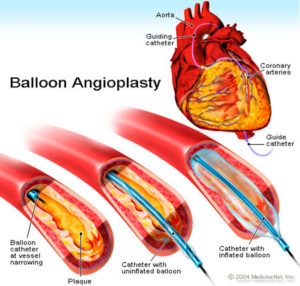 balloon-angioplasty