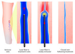 Enovenous-Ablation-Therapy