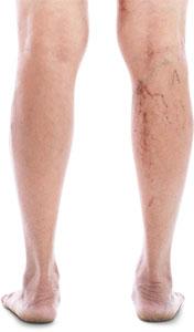 varicose-vein-surgery